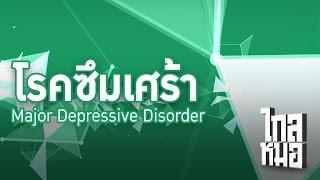 ไกลหมอ | โรคซึมเศร้า (Major Depressive Disorder)