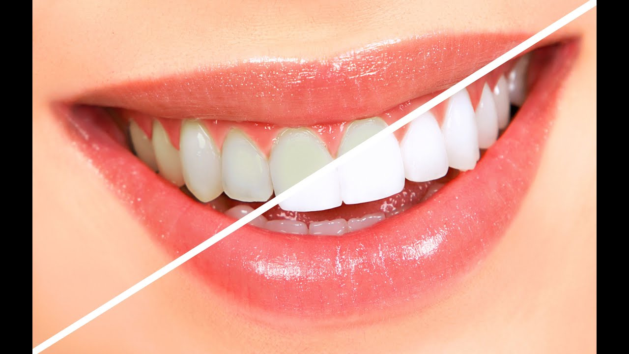 Whiter small after top teeth whitening products