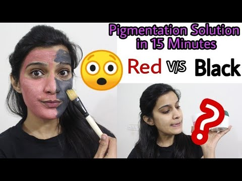 (Hyper)Pigmentation (झांइया) Removal in 15 Min??😲Trying The Best face packs ( Live Results)