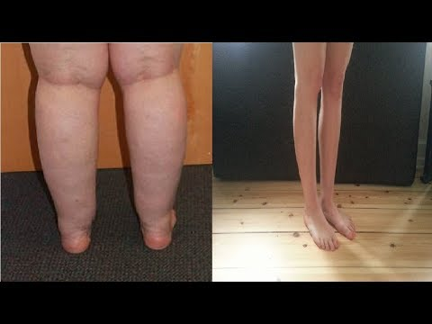 how to get rid of cankles without surgery