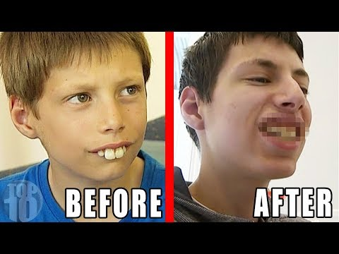 THE MOST AMAZING BEFORE & AFTER PHOTOS