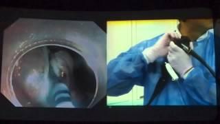 видео Аденома кишечника
