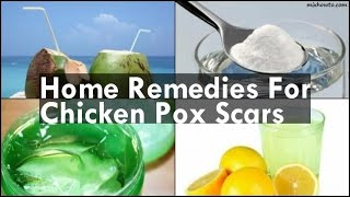 Home Reme Chicken Pox Scars