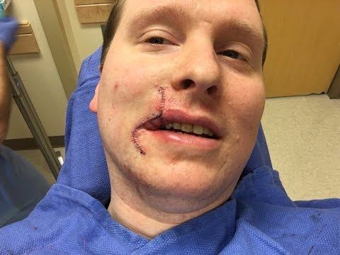 Basal Cell Carcinoma Recovery - 1 Year After Surgery