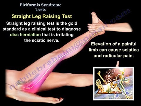 Piriformis Test - Everything You Need To Know - Dr. Nabil Ebraheim