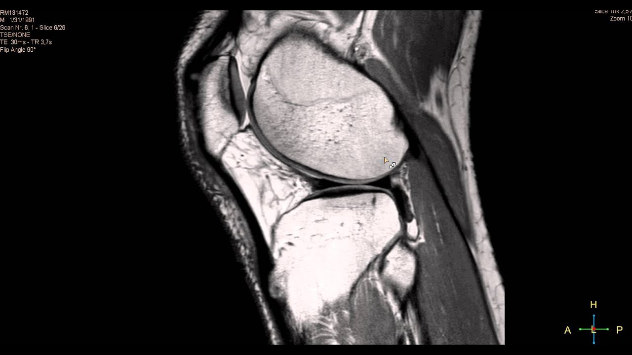 resonancia de rodilla normal