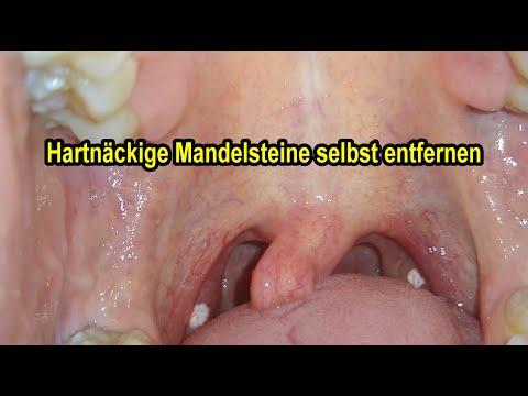 Den stippchen mandeln auf Mandelsteine entfernen: