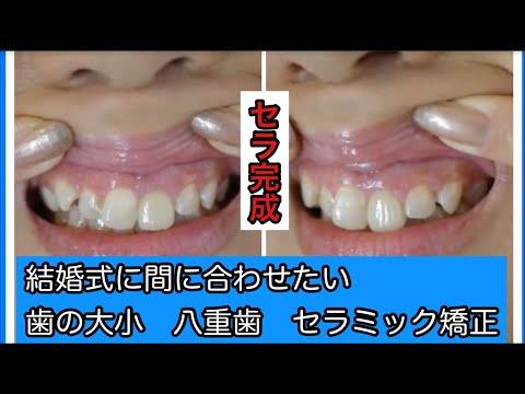 笑った時に見える前歯6本の治療に決めました