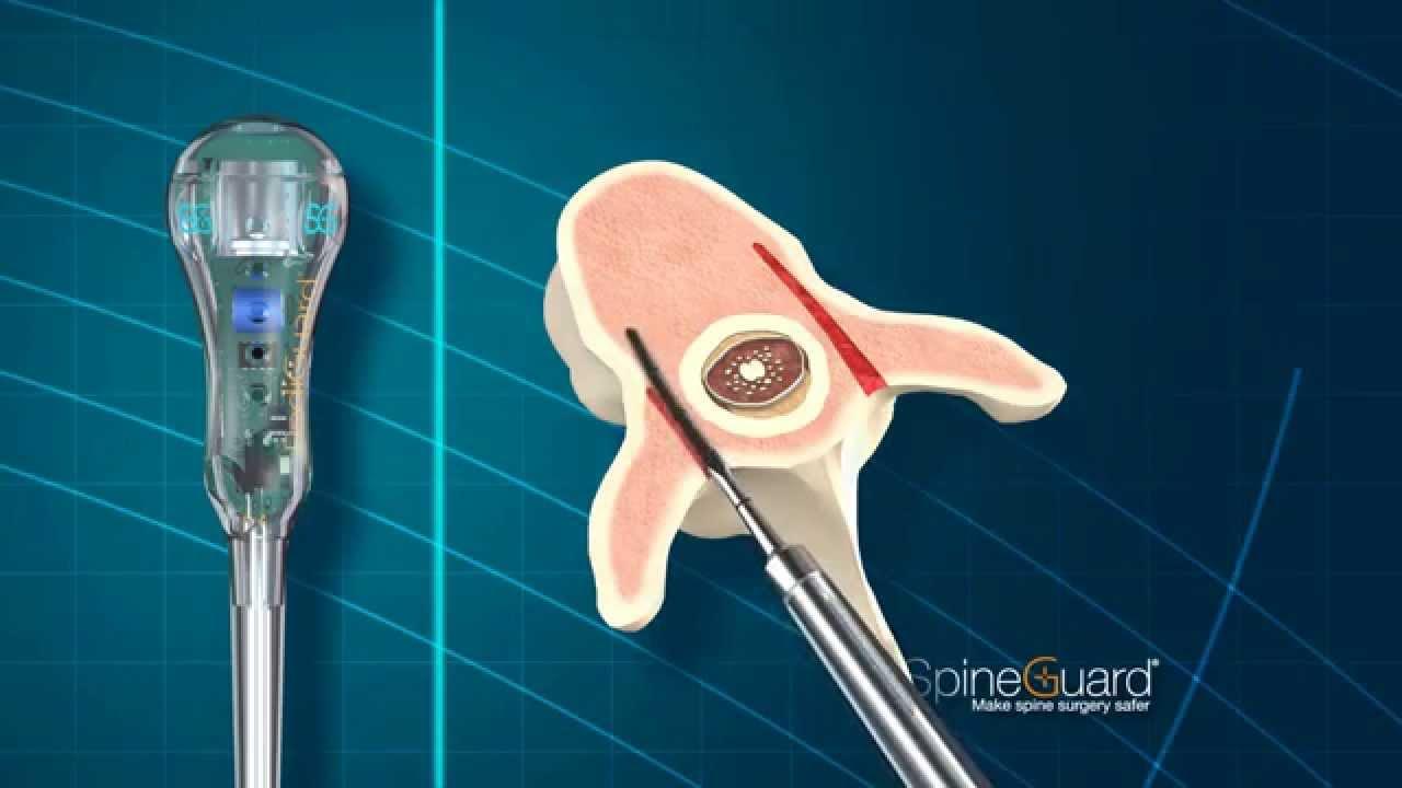 SpineGuard | Making Spine Surgery Safer | Pediguard Back ...