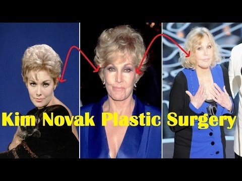 Kim Novak Plastic Surgery Gone Wrong  Before and After