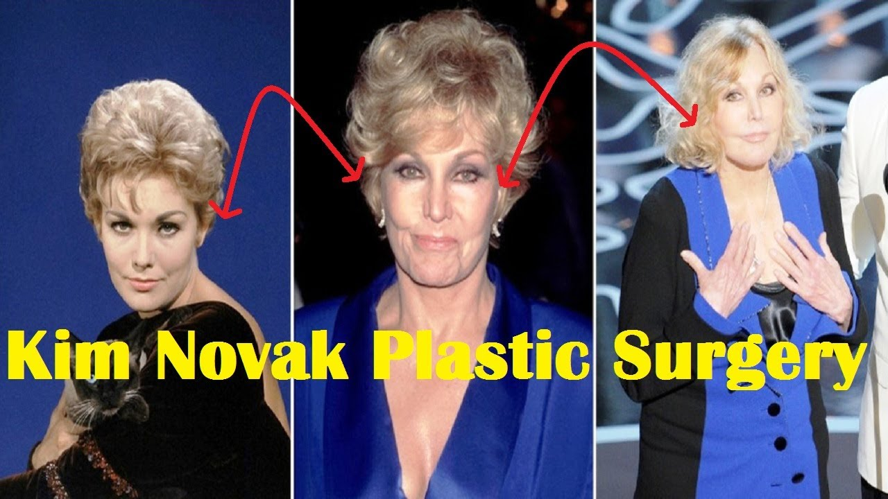 Kim Novak Plastic Surgery Before and After  YouTube