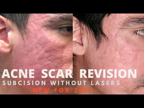 How to treat acne scars- 2017 guide by Dermatologist