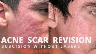 How Treat Acne Scars