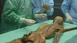 Iceman revealed: 5,300-year-old