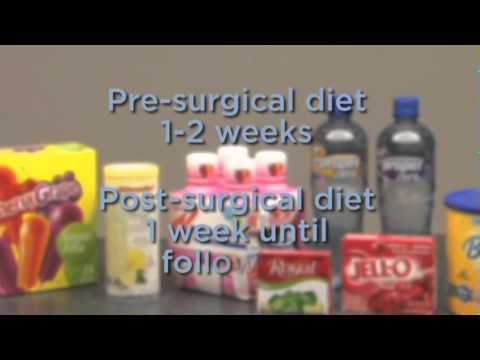 Dietician Advice on Weight Loss Surgery