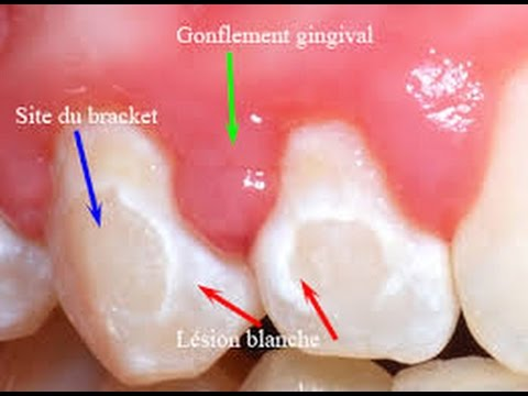 Home Remedies To Reduce Gum Swelling Youtube