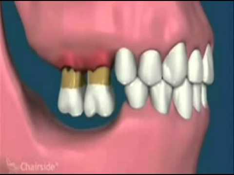 Dunia Sehat Mengenal Gigi Geraham Bungsu  9f5665fec0