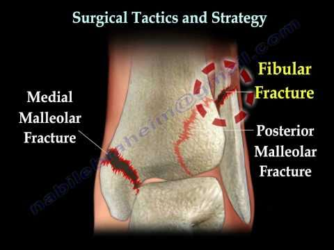 Ankle  fracture / Fractures and its repair- Everything You Need To Know - Dr. Nabil Ebraheim