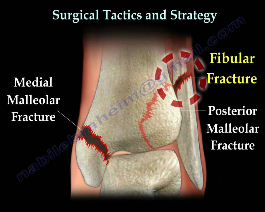 Ankle Fracture Fractures And Its Repair Everything You Need To