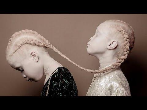 diese-albino-zwillinge-erobern-die-modebranche-im-sturm!