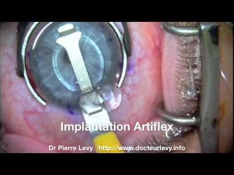 Opération myopie forte par implant Phake Dr Pierre Levy Montpellier France   Implantation Artiflex - YouTube 33bb2dd81d3d