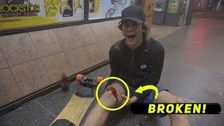 DAVID DOBRIK BREAKS HIS LEG!
