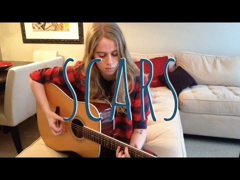 Scars - James Bay (cover By Emma Beckett)