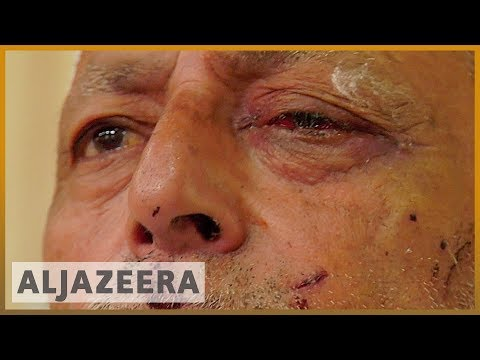 Kashmir: Indian forces accused of firing pellets at civilians