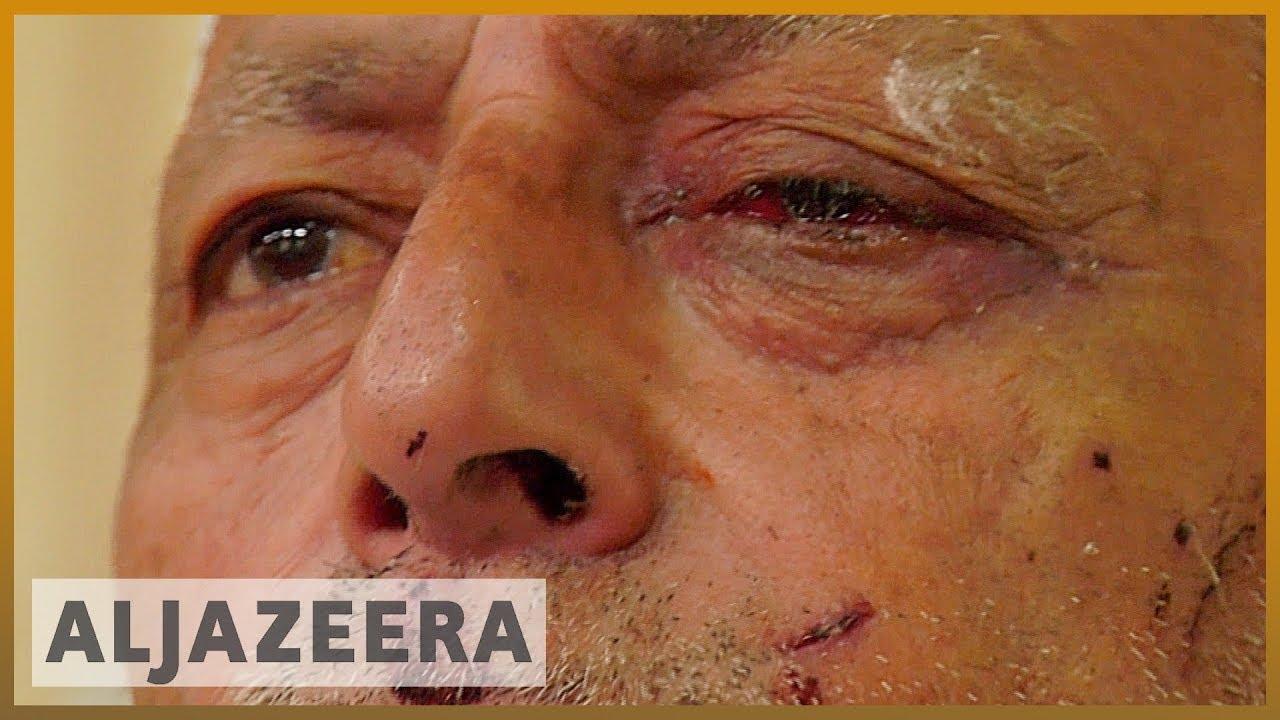 Kashmir: Indian forces accused of firing pellets at civilians - Al Jazeera English thumbnail