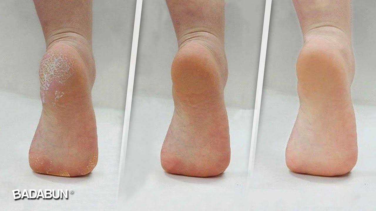 Remedio para suavizar los pies