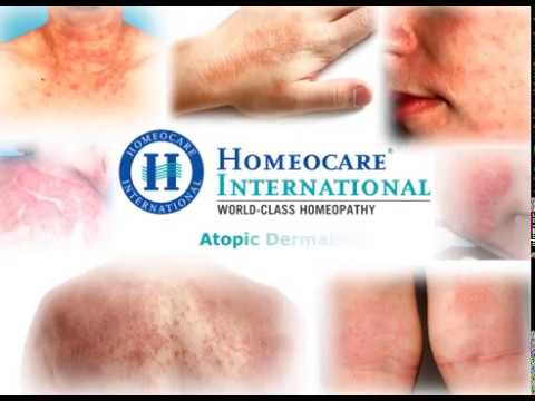 Homeopathy Treatment for Atopic Dermatitis(Eczema)