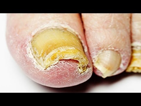 Nail Fungus Treatment - Home Remedy for Nail Fungus That Actually ...