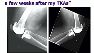 Revision Knee Replacement - ABOS Orthopedic Surgery Board Exam Review