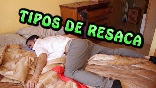 TIPOS DE RESACAS | La Pecera Tonta