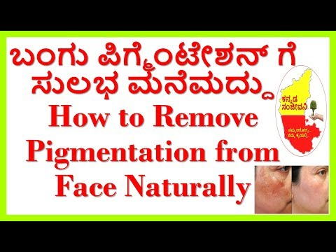 How to Remove Pigmentation,Hyperpigmentation & Brown Spots from Face Naturally..Kannada Sanjeevani