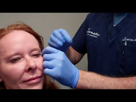 Filling Hollow Temples and Softening Lip Lines with Dr  Janowski