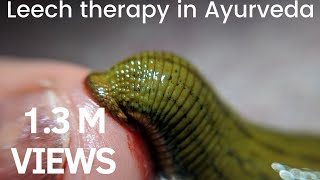Leech therapy in Ayurveda-Jalauka(जळू) thumbnail
