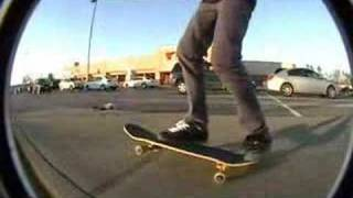 sk8ing and broken ankle