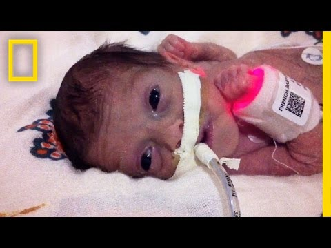 Born 4 Months Early, This Tiny Survivor Beats the Odds | Short Film Showcase