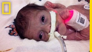Born 4 Months Early, This Tiny Survivor Beats the Odds   Short Film Showcase