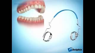 Лим бампер - стоматология одесса(Клиника Регенеративной Стоматологии Geneva в Одессе., 2016-07-18T10:10:40.000Z)