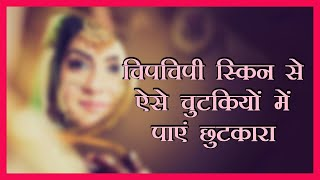 Sajna Hain Mujhe | ऑयली स्किन से हैं परेशान तो अपनाएं यह उपाय | Best Home Remedies for Oily Skin