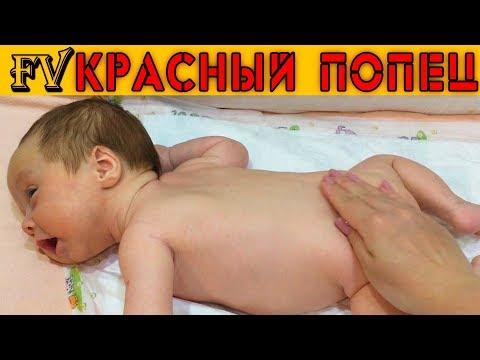 У ребенка болит попа внутри