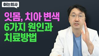 잇몸 왜 까맣게 변하지? 잇몸 색이 변하는 이유, 치아…
