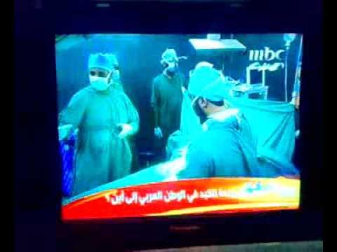 MBC1 report  on Liver transplantation - The National Liver Institute, Menoufia University, Egypt