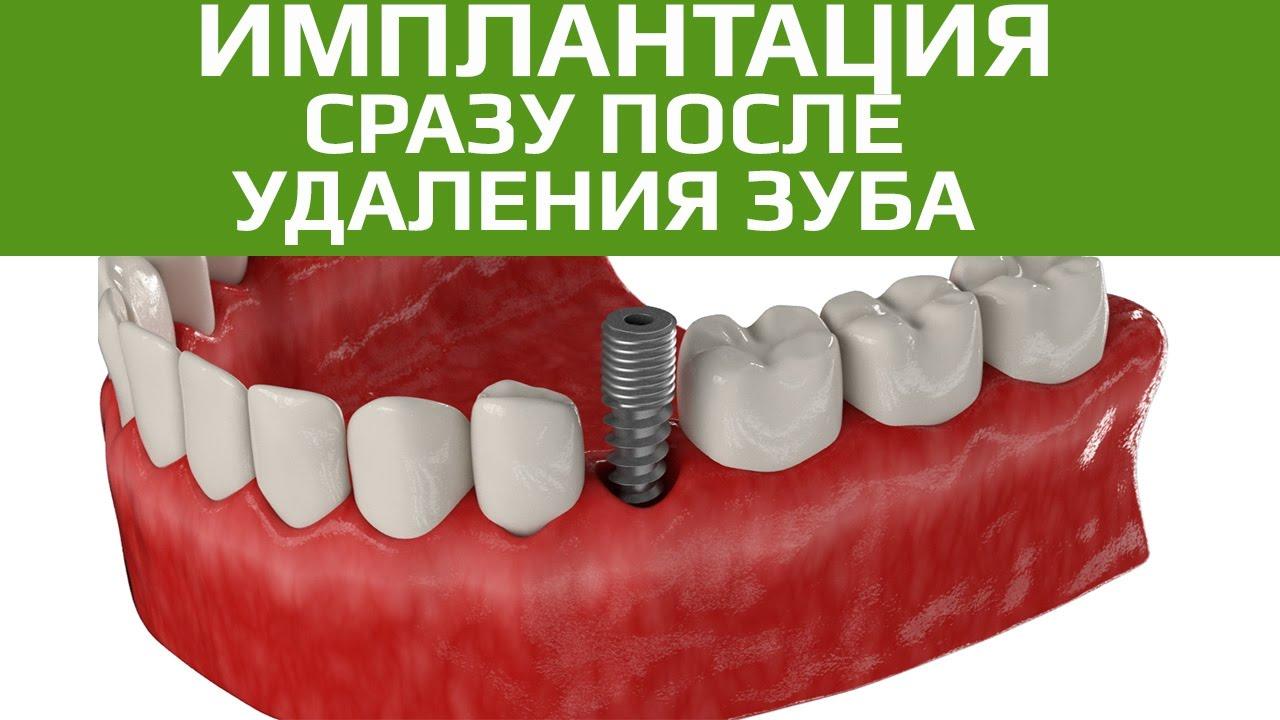 что имплантация зубов стоимость новоуральск всей России Санкт-Петербург