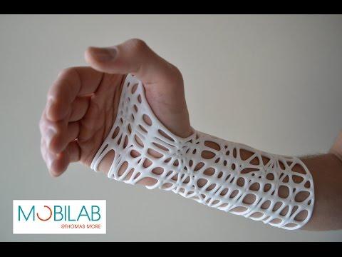 3D printed wrist brace
