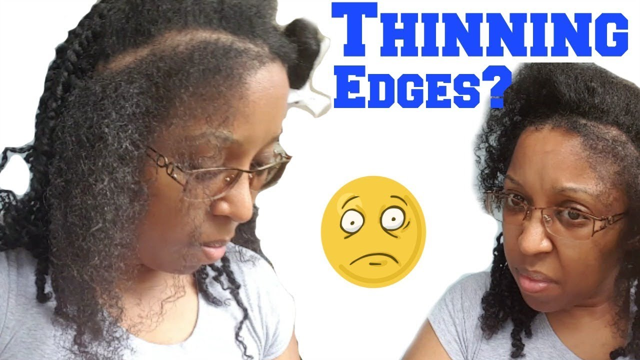 How To Hairstyle For Thinning Edges