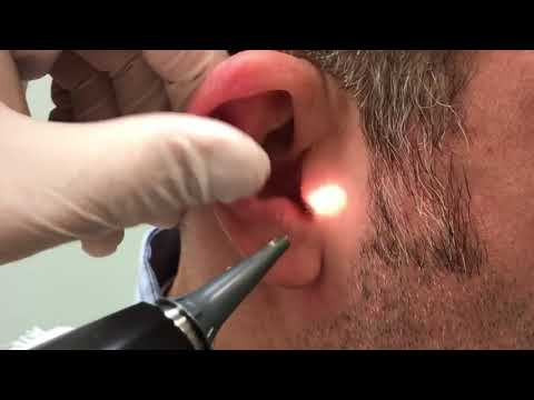 THE BEST EARWAX REMOVAL EVER! (and most awesome) | Dr. Gilmore