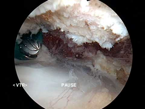 Shoulder Arthroscopic Subacromial Decompression Dr Tony